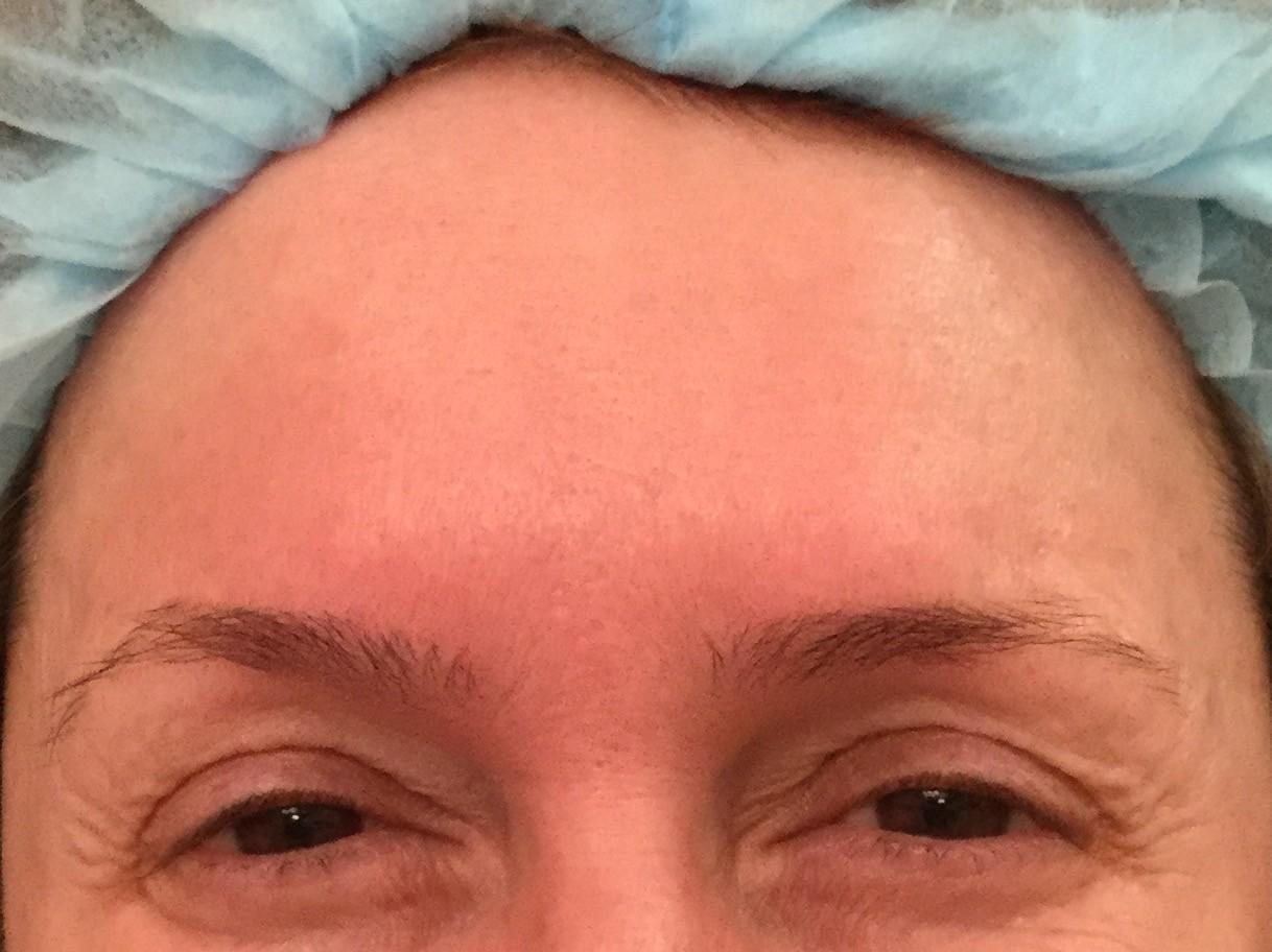 After-Ботулинотерапии межбровных морщин