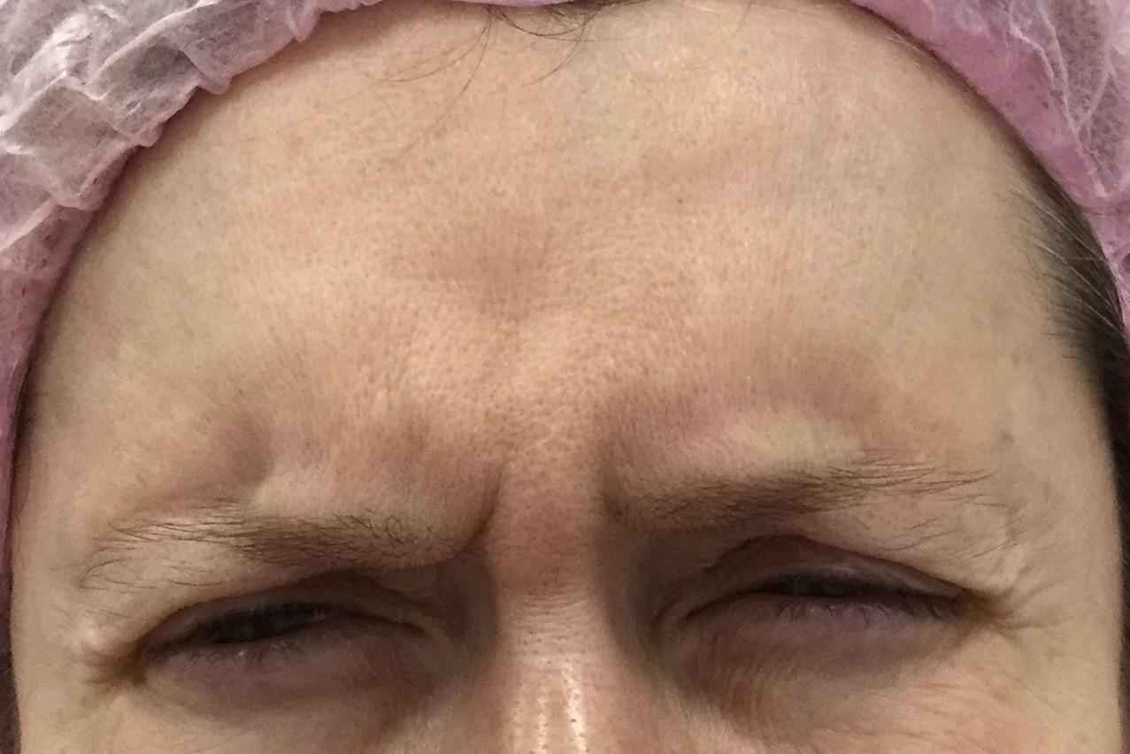 Before-Ботулинотерапии межбровных морщин