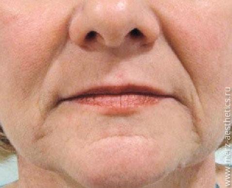 Before-Коррекция носогубных складок и морщин марионеток препаратом Белотеро