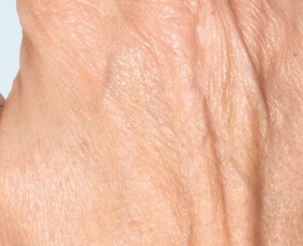 Before-Контурная пластика кистей рук