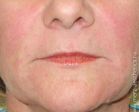 After-Коррекция носогубных складок и морщин марионеток препаратом Белотеро