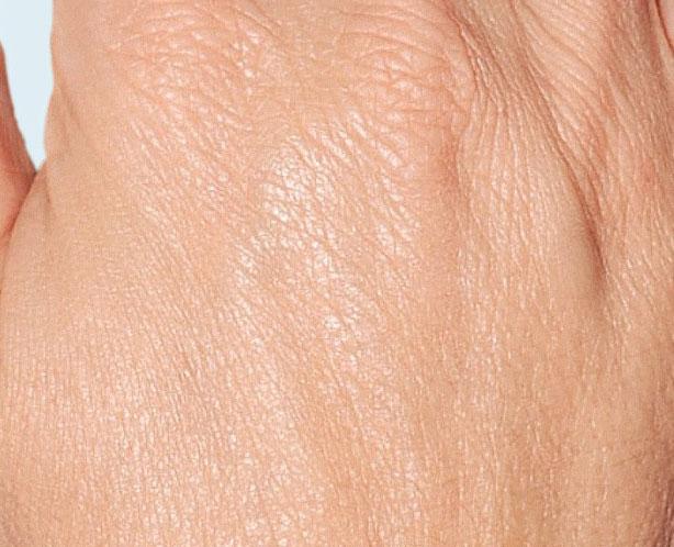 After-Контурная пластика кистей рук